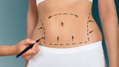 تصویر از لیپوساکشن (Liposuction) چیست؟