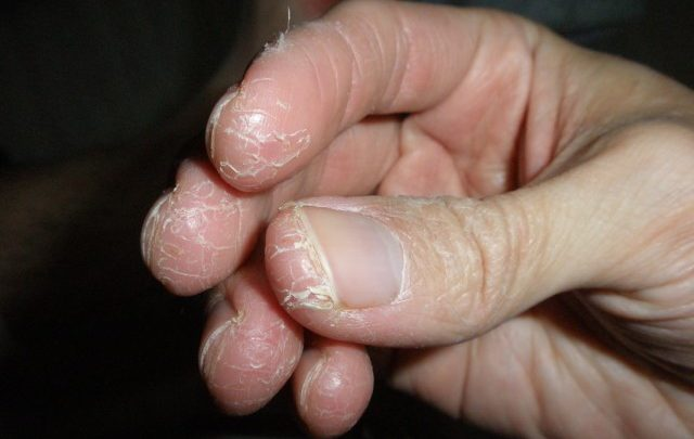 علت اگزمای انگشتان دست