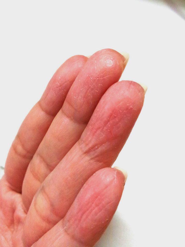 علائم اگزمای انگشت دست