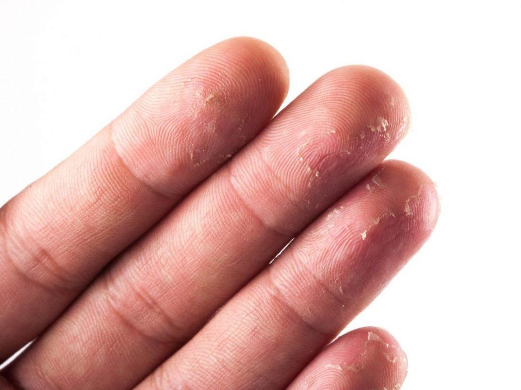 علت ایجاد اگزمای انگشتان دست چیست؟