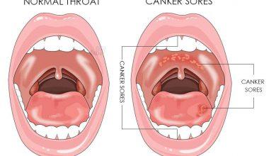تبخال داخل دهان چه علائمی دارد و چگونه به وجود میآید؟