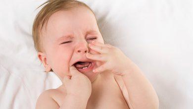 تیروئید پُرکار در نوزادان