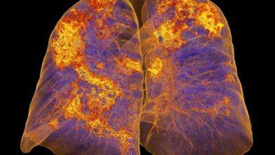 ریه دارای عفونت