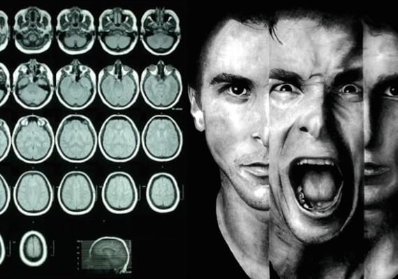 انواع-اختلال-شخصیت