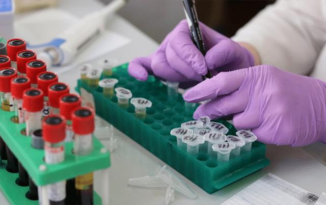 آزمایش خون برای آنتی بادی کرونا