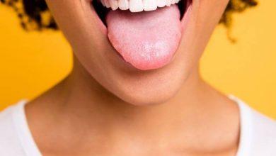 7 علت زرد شدن زبان و راه درمان آن