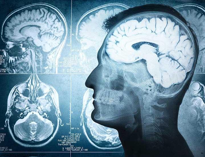 راه های درمان تومور مغزی