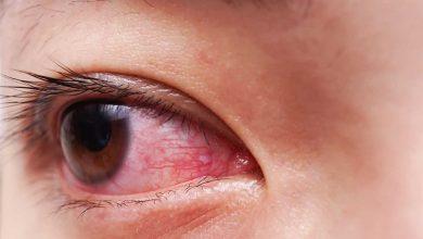 قرمزی چشم و کرونا