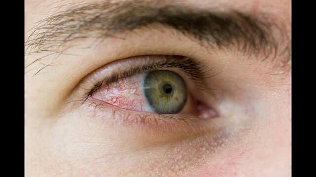 خستگی چشم خطرناک نیست. آزاردهنده بودن آن جین هر پلک زدن یا شروع کار با کامپیوتر میتواند باعث سوزش چشم و سخت شدن بینایی شود.