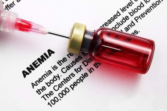 در انتها این پزشک است که تعیین میکند کم خونی دارید یا نه.