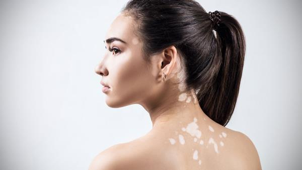 عامل لکه های پوستی