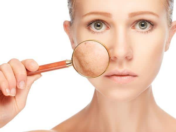 علت لکه های پوستی