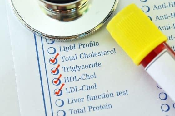اگر مبتلا به دیابت هستید باید بیشتر تست LDL بدهید.
