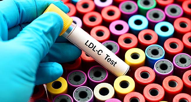 کلسترول بالا به طور کلی علائمی ایجاد نمیکند، بنابراین لازم است مرتباً بررسی شود.