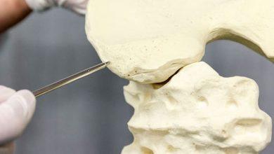آسپیراسیون مغز استخوان