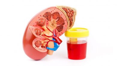 ادرار خونی یا هماچوری