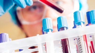 انواع تست خون متعدد، از سطح کلسترول تا شمارش سلولهای خونی، وجود دارد. گاهی اوقات نتایج چند دقیقه پس از انجام آزمایش خون آماده هستند. این تست، خون گیری ساده است
