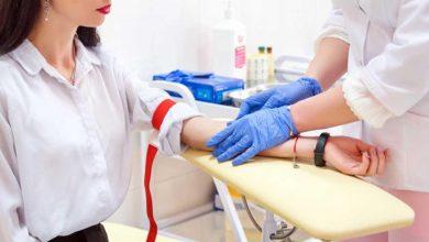 آزمایش انعقاد خون