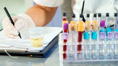 تصویر از آزمایش پروتئین ادرار چیست؟