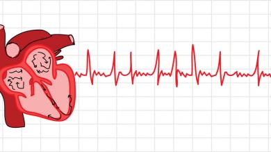 به غیرعادی بودن ضربان قلب آریتمی میگویند. اگر ضربان قلب نامنظم باشد، میگوییم آریتمی رخ داده است. تشخیص و درمان به موقع آریتمی به زندگی سالم کمک میکند.