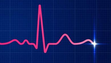 الکتروکاردیوگرام EKG یک آزمایش ساده و بدون درد است که فعالیت الکتریکی قلب شما را میسنجد.