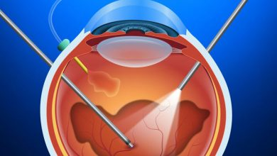 جراحی ویترکتومی