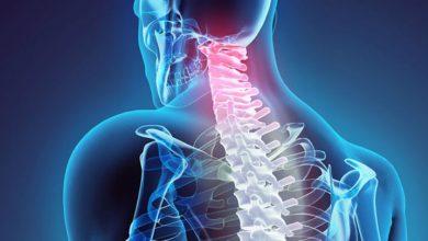 جراحی دیسک گردنی