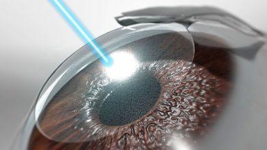 جراحی لیزیک چشم