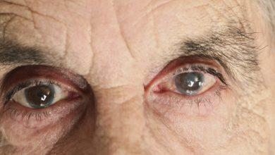 آب مروارید در ابتدا ناچیز است و ممکن است تاثیر کمی بر بینایی شما داشته باشد. شما هرروز از عدسی چشم استفاده میکنید. با افزایش سن، احتمال آب مروارید بیشتر میشود
