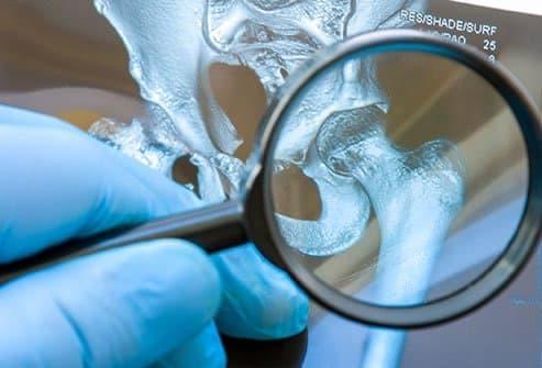 سرطان ثانویه استخوان شناخته میشود و شایعتر از سرطان اولیه استخوان است.