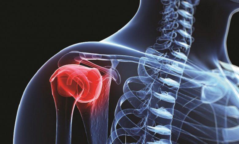 سرطان استخوان زمانی رخ میدهد که یک تومور یا توده بافت غیرطبیعی در استخوان تشکیل شود. تومور ممکن است بدخیم باشد، به این معنی که به طور تهاجمی رشد نموده و به سایر قسمتهای بدن گسترش یابد.