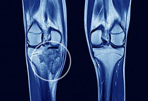در بافتبرداری، که یک نمونه کوچک از بافت برای تشخیص سرطان استخوان مورد تجزیهوتحلیل قرار میگیرد