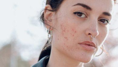 آلرژی شدید میتواند تهدید کننده حیات باشد. آلرژی تاثیرات مختلفی بر افراد میگذارد. در حالی که فردی نسبت به ماده حساسیتزا واکنش خفیفی نشان میدهد، ممکن است شخص دیگری علائم شدیدتری را تجربه کند.