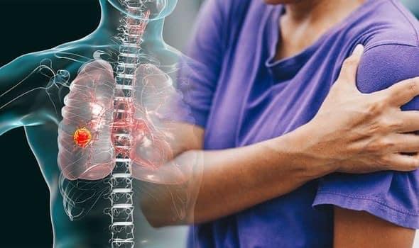 سرطان ریه که به استخوانها سرایت کرده است میتواند باعث ایجاد درد در ناحیه کمر، شانه، قفسه سینه یا سایر نواحی بدن شود.