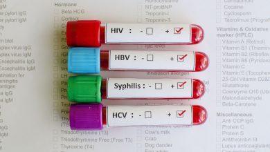 تصویر از آزمایش برای تشخیص بیماری های مقاربتی (STD)