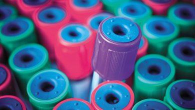 تصویر از روشهای سرولوژیک برای نظارت و واکنش به پاندمی ناشی از ویروس SARS-CoV-2 کاربرد بالینی مهمی دارد