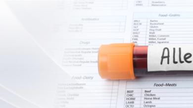 آزمایش آلرژی تستی است که به وسیله یک متخصص آموزش دیده آلرژی انجام میشود تا نشان دهد آیا بدن شما نسبت به مادهی شناخته شده خاصی حساسیت و آلرژی دارد یا خیر.