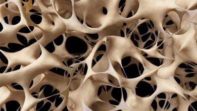 مدیریت پوکی استخوان