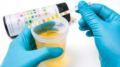 آزمایش ادرار برای دیابت