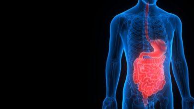 التهابی روده ای (IBD: Inflammatory Bowel Disease) یک بیماری است که در آن به دلایلی مختلف، رودهها دچار التهاب میشوند.
