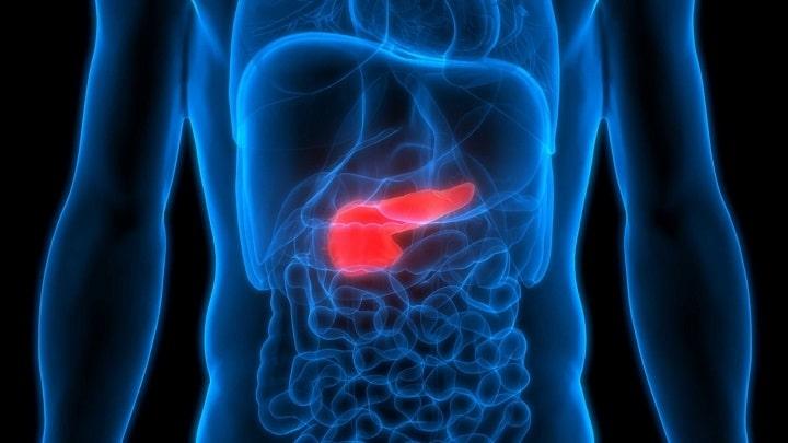 با شناخت علائم بیماری پانکراس میتوان سریعتر برای درمان اقدام کرد.