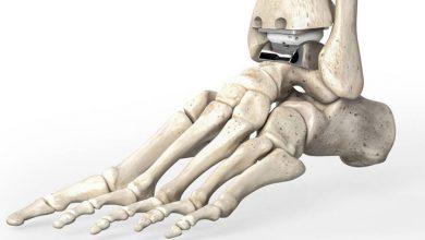 جراحی تعویض مفصل مچ پا