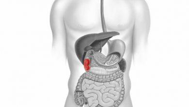 تصویر از همه چیز درباره ی گاستریت / دئودنیت (ورم معده/التهاب دوازدهه)