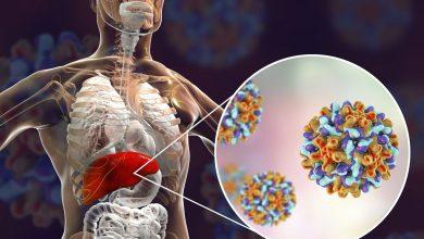 تصویر از هپاتیت چیست؛ با انواع هپاتیت و راه درمان آن آشنا شوید