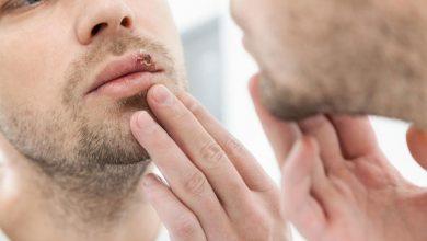 تصویر از تبخال چیست ؛ علتها، علائم و راههای درمان تبخال