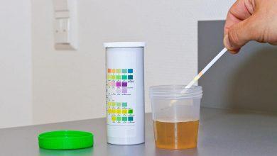 آزمایش گلوکز ادرار