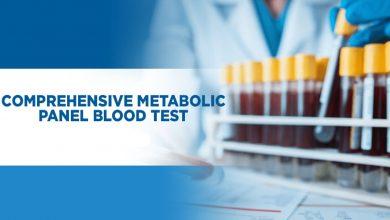 تصویر از آزمایش پنل متابولیک جامع چیست؟
