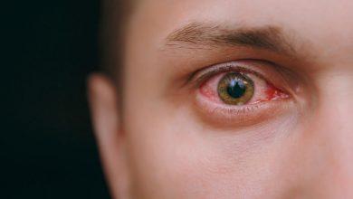 تصویر از التهاب قرنیه؛ علائم، علتها و روش های درمان