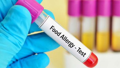 تصویر از بهترین آزمایش حساسیت غذایی چیست؟