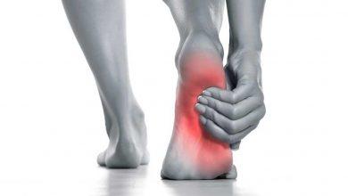 تصویر از هر آنچه که در مورد التهاب فاشیای پلانتار باید بدانید